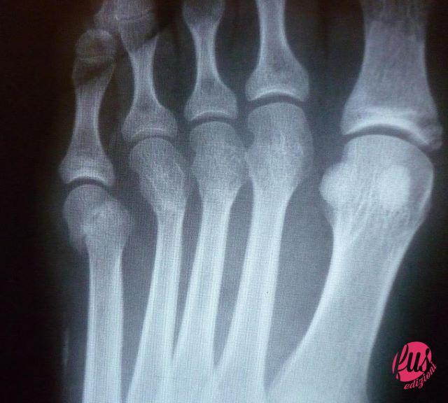 sintomi-del-dito-del-piede-rotto